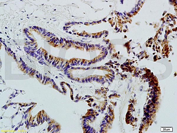 CD20 Polyclonal Antibody