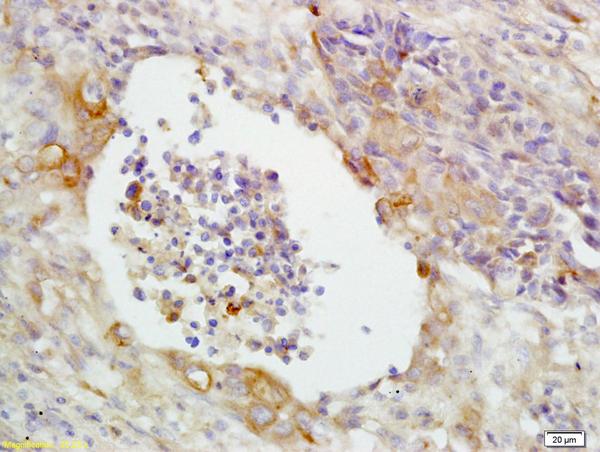CD14 Polyclonal Antibody