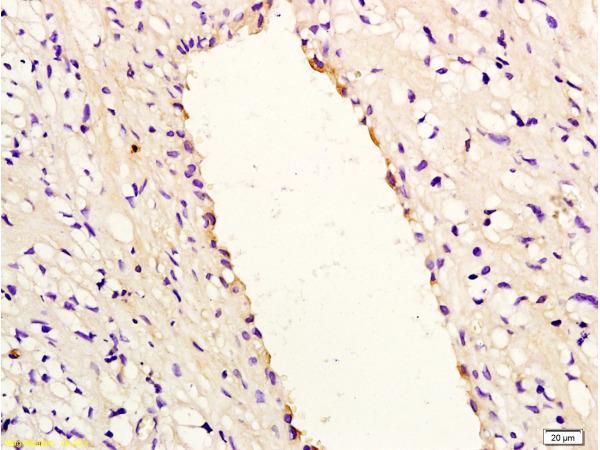 IL-8 Polyclonal Antibody