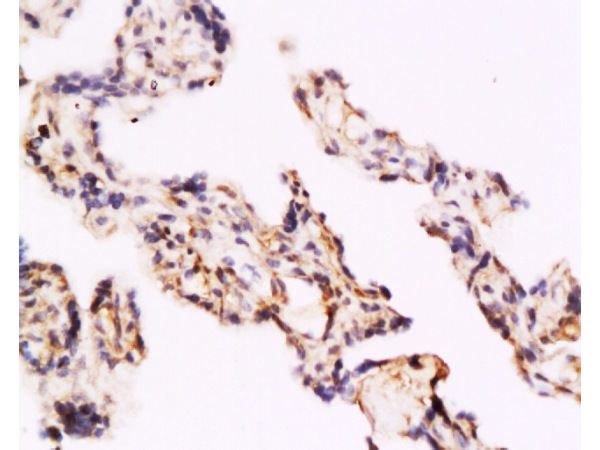 Formalin-fixed and paraffin embedded human placenta labeled with  Rabbit Anti TLR4/CD284 Polyclonal Antibody, Unconjugated (bs-1021R) at 1:200 followed by conjugation to the secondary antibody and DAB staining
