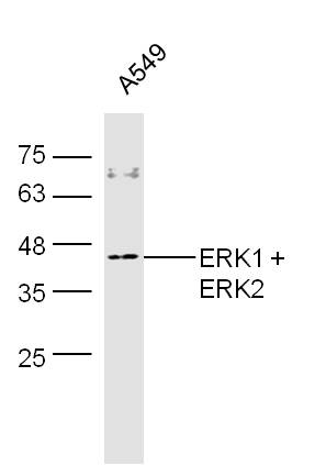 A549 cell lysates probed with Rabbit Anti-ERK1 + 2 Polyclonal Antibody, Unconjugated (bs-2673R) at 1:300 overnight at 4\u02daC. Followed by conjugation to secondary antibody (bs-0295G-HRP) at 1:500 for 90 min at 37\u02daC.