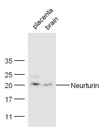 Mouse placenta and heart lysates probed with Rabbit Anti-Neurturin Polyclonal Antibody, Unconjugated (bs-0073R) at 1:300 overnight at 4˚C. Followed by conjugation to secondary antibody (bs-0295G-HRP) at 1:500 for 90 min at 37˚C.