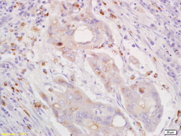 Formalin-fixed and paraffin embedded human lung carcinoma labeled with  Rabbit Anti CXorf36 Polyclonal Antibody, Unconjugated (bs-0488R) at 1:200 followed by conjugation to the secondary antibody and DAB staining