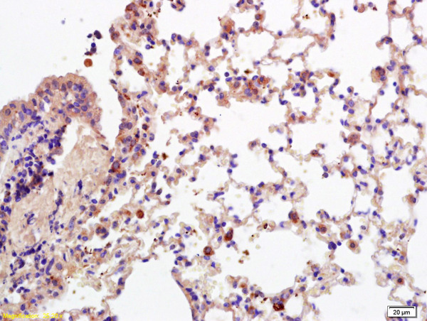 Formalin-fixed and paraffin embedded mouse lung labeled with Anti-CD28 Polyclonal Antibody, Unconjugated (bs-1297R) at 1:200 followed by conjugation to the secondary antibody and DAB staining