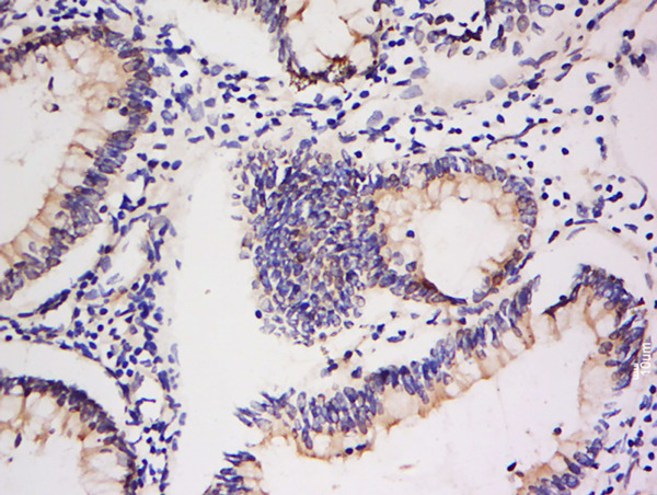 Formalin-fixed and paraffin embedded human colon carcinoma labeled with Anti-Integrin Alpha V + Beta 5 Polyclonal Antibody, Unconjugated (bs-1356R) at 1:200 followed by conjugation to the secondary antibody and DAB staining.