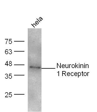 HeLa lysates probed with Neurokinin 1 Receptor Polyclonal Antibody, unconjugated (bs-0064R) at 1:300 overnight at 4\u00b0C followed by a conjugated secondary antibody at 1:10000 for 60 minutes at 37\u00b0C.