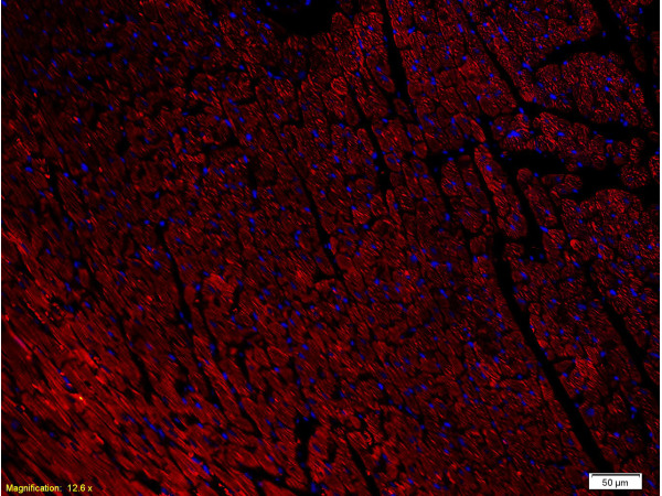 Formalin-fixed and paraffin-embedded rat heart labeled with Anti-NPY1R Polyclonal Antibody, Unconjugated(bs-1070R) 1:400, overnight at 4\u00b0C, The secondary antibody was Goat Anti-Rabbit IgG, PE conjugated(bs-0295G-PE)used at 1:200 dilution for 40 minutes at 37\u00b0C.