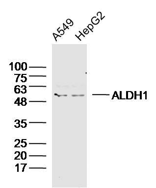 Human A549 and HepG2 cells probed with ALDH1 Polyclonal Antibody, unconjugated (bs-10162R) at 1:300 overnight at 4\u00b0C followed by a conjugated secondary antibody at 1:20000 for 60 minutes at 37\u00b0C.