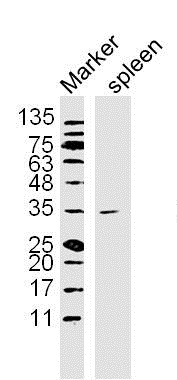 Lane 1: Mouse Spleen lysates probed with NFKBIA\/IKB alpha Polyclonal Antibody, Unconjugated (bs-1287R) at 1:300 overnight at 4\u02daC. Followed by a conjugated secondary antibody at 1:10000 for 60 min at 37\u02daC.