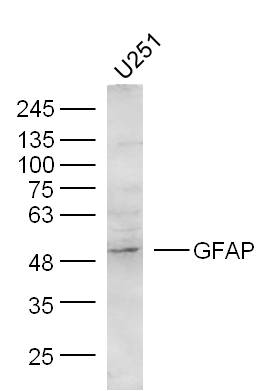 U251 Cells lysates probed with GFAP Polyclonal Antibody, unconjugated (bs-0199R) at 1:300 overnight at 4\u00b0C followed by a conjugated secondary antibody at 1:10000 for 60 minutes at 37\u00b0C.