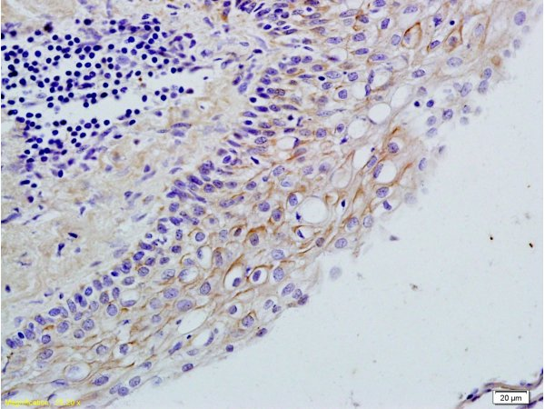 Formalin-fixed and paraffin embedded rat ovary tissue labeled with Rabbit Anti-TLR2\/CD282 Polyclonal Antibody (bs-1019R), Unconjugated  1:200 followed by conjugation to the secondary antibody and DAB staining