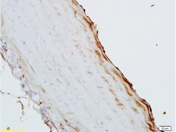 Formalin-fixed and paraffin embedded rat aortic cavity labeled with Rabbit Anti-GM-CSF Polyclonal Antibody (bs-0999R), Unconjugated  1:200 followed by conjugation to the secondary antibody and DAB staining