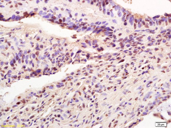 Formalin-fixed and paraffin embedded human colon carcinoma labeled with  Rabbit Anti AIM2 Polyclonal Antibody, Unconjugated (bs-5986R) at 1:200 followed by conjugation to the secondary antibody and DAB staining
