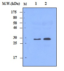 Lane 1 : Human Serum 0.5uL; Lane 2 : Human Serum 1.0uL; probed with Complement C1q (9A7)\u00a0Monoclonal Antibody, unconjugated (bsm-50312M) at 1:1000 overnight at 4\u00b0C followed by a conjugated secondary antibody at 1:5000 for 60 minutes at Room Temperature.