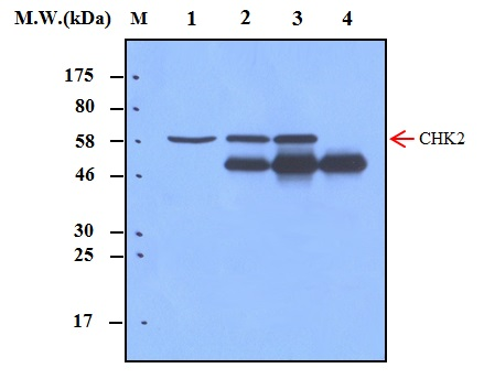Immunoprecipitation of Chk2 (Checkpoint kinase 2)\u00a0from HeLa cell lysates using Chk2 (Checkpoint kinase 2) (20A8)\u00a0Monoclonal Antibody (bsm-50320M): Lane 1 : HeLa Cell Lysate; Lane 2 : Precipitated from 200ug of Cell Lysate using 2ug of antibody; Lane 3 : Precipitated from 200ug of Cell Lysate using 5ug of antibody; Lane 4 : Precipitated from PBS using 5ug of antibody. WB analysis was performed using bsm-50320M at 0.5ug\/mL (1:2000) and incubated at 4\u2103 overnight, followed secondary antibody incubation for 60min at  Room Temperature.