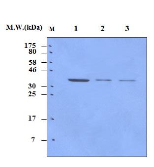 MEK6 (MAP kinase kinase 6) (4G6) Monoclonal Anti – Bioss Map Kinase on jak-stat signaling pathway, mapk/erk pathway, cyclic adenosine monophosphate, tgf beta signaling pathway, signal transduction, protein kinase, notch signaling pathway, receptor tyrosine kinase, wnt signaling pathway, cyclin-dependent kinase, pi3k/akt/mtor pathway, protein kinase c, adenylate cyclase, c-jun n-terminal kinases,