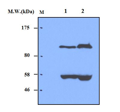 Lane 1 : Human Serum (0.5uL);\r\nLane 2 : Human Serum (1.0uL) probed with bsm-50226M Complement factor B (28A3) Monoclonal Antibody at 4.0ug\/mL (1:250) and incubated at 4\u2103 overnight, followed by secondary antibody incubation for 60min at room temperature.