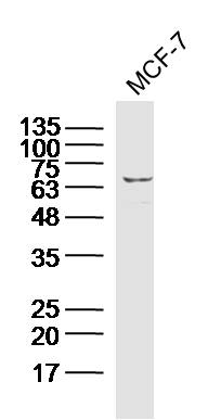Human MCF7 cells probed with Calpain 1 Polyclonal Antibody, unconjugated (bs-1099R) at 1:300 overnight at 4\u00b0C followed by a conjugated secondary antibody at 1:10000 for 90 minutes at 37\u00b0C.\r\n