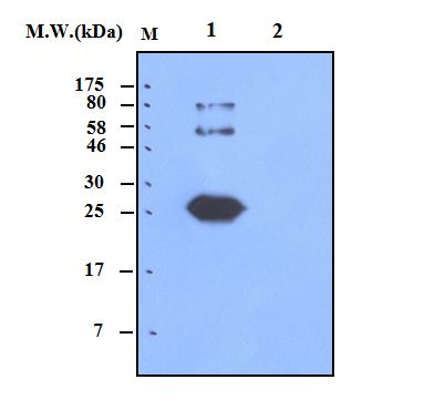 Lane 1 : Calbindin-1 Recombinant Protein; Lane 2 : Calbindin-2 Recombinant Protein; probed with bsm-50359M Calbindin 1 (2E5) Monoclonal Antibody at 0.5ug\/mL (1:2000) and incubated at 4\u2103 overnight, followed secondary antibody incubation for 60min at room temperature.