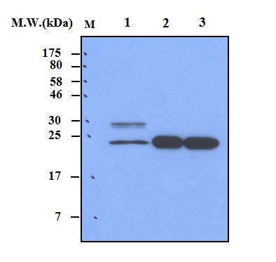 Lane 1 : IMR32 Cell Lysate; Lane 2 : Mouse Brain Tissue; Lane 3 : Rat Brain Tissue; probed with bsm-50359M Calbindin 1 (2E5) Monoclonal Antibody at 0.5ug\/mL (1:2000) and incubated at 4\u2103 overnight, followed secondary antibody incubation for 60min at room temperature.