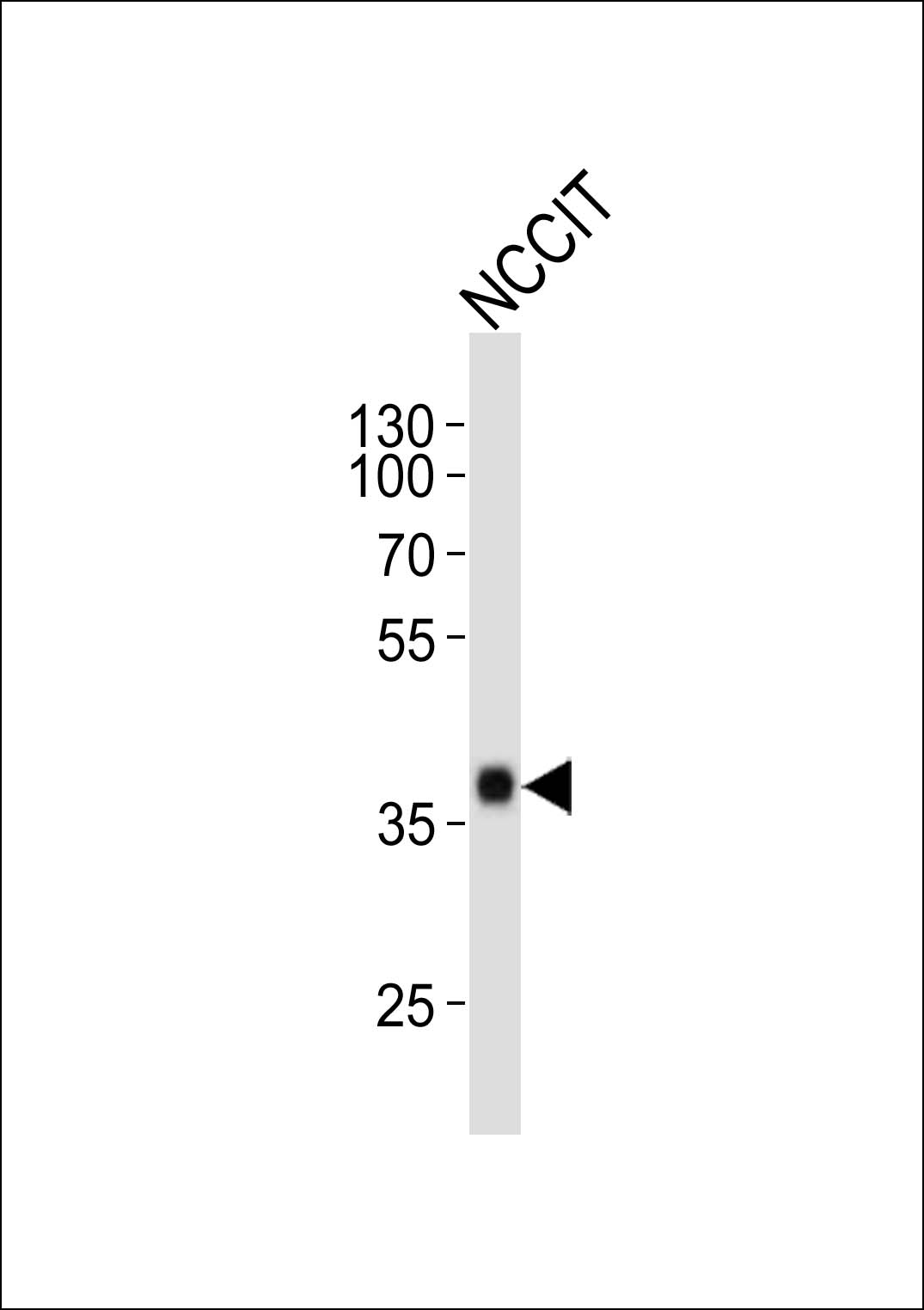 NCCIT cell lysate probed with bsm-51142M SOX2 (7C4) Monoclonal Antibody at 1:1000 dilution and 4\u2103 overnight incubation, followed by secondary antibody incubation for 60min at room temperature.