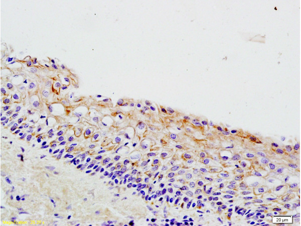 Formalin-fixed and paraffin embedded rat ovary tissue labeled with Anti-Wnt3a Polyclonal Antibody (bs-1700R), Unconjugated at 1:200 followed by conjugation to the secondary antibody, (SP-0023), and DAB staining