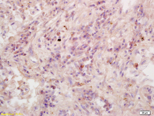 Formalin-fixed and paraffin embedded human lung carcinoma labeled with Anti-RASSF1A Polyclonal Antibody, Unconjugated (bs-1234R) at 1:200 followed by conjugation to the secondary antibody and DAB staining.