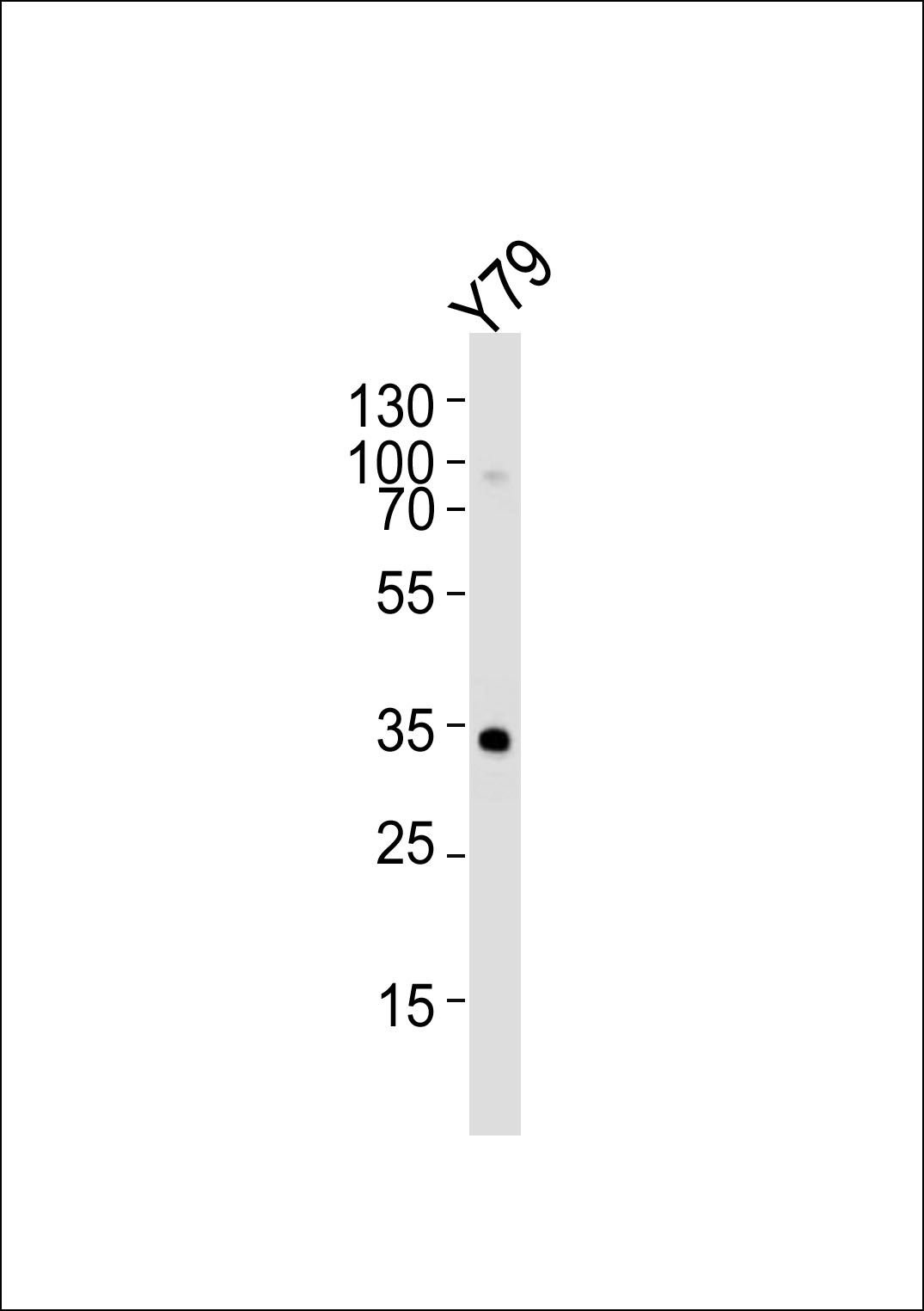 Lane 1: Y79 Cell lysates; probed with OTX2 (3C2) Monoclonal Antibody, unconjugated (bsm-51276M) at 1:1000 overnight at 4\u00b0C followed by a conjugated secondary antibody for 60 minutes at 37\u00b0C.