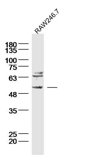 Raw246.7 Cell lysates probed with Neurokinin B receptor Polyclonal Antibody, unconjugated (bs-0166R) at 1:300 overnight at 4°C followed by a conjugated secondary antibody for 60 minutes at 37°C.