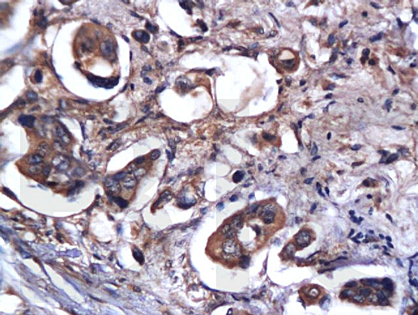 Formalin-fixed and paraffin embedded rat brain labeled with Anti-Caspase-9 Polyclonal Antibody, Unconjugated(bs-0049R) 1:200 followed by conjugation to the secondary antibody and DAB staining