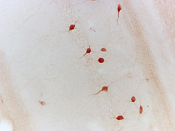 Formalin-fixed and paraffin embedded chicken testis tissue labeled with  Anti-Neurturin Polyclonal Antibody, Unconjugated(bs-0073R) 1:200 followed by conjugation to the secondary antibody and DAB staining