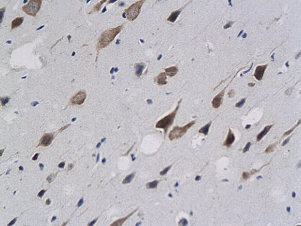 Formalin-fixed and paraffin embedded rat brain labeled with anti-Calponin 1/COLP Polyclonal Antibody (bs-0095R), Unconjugated  followed by conjugation to the secondary antibody and DAB staining