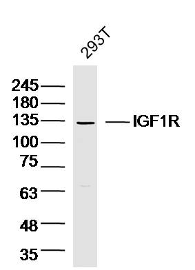 Lane 1: 293T lysates probed with IGF1R Polyclonal Antibody, Unconjugated (bs-4985R) at 1:300 overnight at 4\u02daC. Followed by a conjugated secondary antibody  at 1:5000 for 90 min at 37\u02daC.