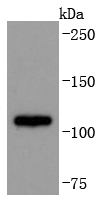 Jurkat cell lysate probed with ADAM17 (9E7) Monoclonal Antibody, Unconjugated (bsm-52009R) at 1:1000 overnight at 4\u02daC. Followed by a conjugated secondary antibody.