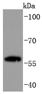 PC12 cell lysate probed with PPAR gamma (45G1) Monoclonal Antibody, Unconjugated (bsm-52220R) at 1:1000 overnight at 4\u02daC. Followed by a conjugated secondary antibody.