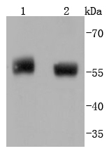 Lane 1: Human placenta; Lane 2: Human lung lysate probed with PTEN(Ser380) (4C9) Monoclonal Antibody, Unconjugated (bsm-52192R) at 1:1000 overnight at 4\u02daC. Followed by a conjugated secondary antibody.