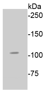 Lane 1: A549 lysates probed with Rb(S807) (2D10) Monoclonal Antibody (bsm-52197R) at 1:1000 overnight at 4˚C. Followed by a conjugated secondary antibody  for 60 minutes.