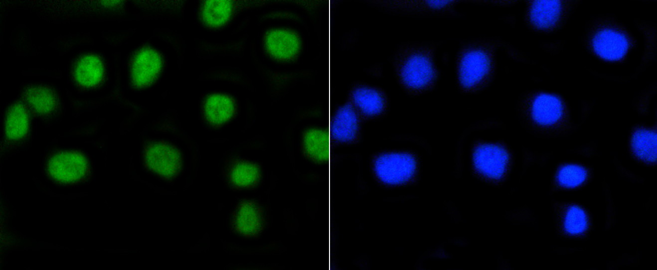 A549 cells were stained with Rb(S807) (2D10) Monoclonal Antibody (bsm-52197R)  at  [1:200] incubated for overnight at 4C, followed by secondary antibody incubation and DAPI staining.