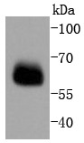 Lane 1: PC-12 lysates probed with Smad4 (3A1) Monoclonal Antibody (bsm-52225R) at 1:1000 overnight at 4\u02daC. Followed by a conjugated secondary antibody.