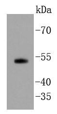 Lane 1: PC-3 lysates probed with Smad5 (7A1) Monoclonal Antibody (bsm-52226R) at 1:1000 overnight at 4\u02daC. Followed by a conjugated secondary antibody.