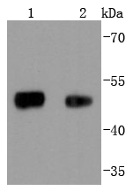 Lane 1: 293 lysates; Lane 2: Mouse lung lysates probed with FOXA1 (5F7) Monoclonal Antibody (bsm-52072R) at 1:1000 overnight at 4\u02daC. Followed by a conjugated secondary antibody.