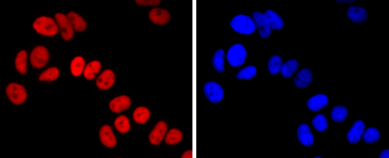 MCF-7 cells were stained with FOXA1 (5F7) Monoclonal Antibody (bsm-52072R) at 1:200 dilution, incubated overnight at 4C, followed by secondary antibody incubation, DAPI staining of the nuclei and detection.