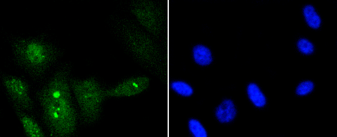 PC-3M cells were stained with p95/NBS1(S343) (5B5) Monoclonal Antibody (bsm-52184R) at 1:200 dilution, incubated overnight at 4C, followed by secondary antibody incubation, DAPI staining of the nuclei and detection.
