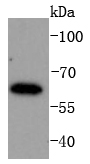 K562 lysates probed with IRF6 (1A1) Monoclonal Antibody (bsm-52119R) at 1:1000 overnight at 4\u02daC. Followed by a conjugated secondary antibody.