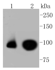 Lane 1: HepG2; Lane 2: Raji lysates probed with Nrf2(S40) (7G4) Monoclonal Antibody (bsm-52179R) at 1:1000 overnight at 4˚C. Followed by a conjugated secondary antibody.