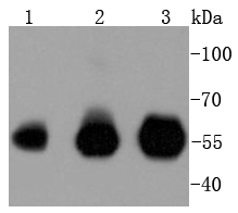 Lane 1: Hela; Lane 2: Jurkat; Lane 3: THP-1 lysates probed with IRF3 (4C3) Monoclonal Antibody (bsm-52116R) at 1:1000 overnight at 4\u02daC. Followed by a conjugated secondary antibody .