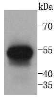 Human lung lysates probed with Cytokeratin 13 (5A3) Monoclonal Antibody(bsm-52053R) at 1:1000 overnight at 4\u02daC. Followed by a conjugated secondary antibody.