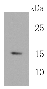 Lane 1: BT-20 cell lysates; probed with HDAC2 (3B7) Monoclonal Antibody (bsm-52082R) at 1:1000 overnight at 4\u02daC. Followed by a conjugated secondary antibody.\r\n