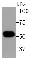 Human skin lysates; probed with Cytokeratin 16 (1A4) Monoclonal Antibody (bsm-52056R) at 1:1000 overnight at 4\u02daC. Followed by a conjugated secondary antibody.