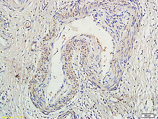 Formalin-fixed and paraffin embedded human colon cancer labeled with Anti-Socs1Polyclonal Antibody (bs-0113R), Unconjugated at 1:300, followed by conjugation to the secondary antibody and DAB staining